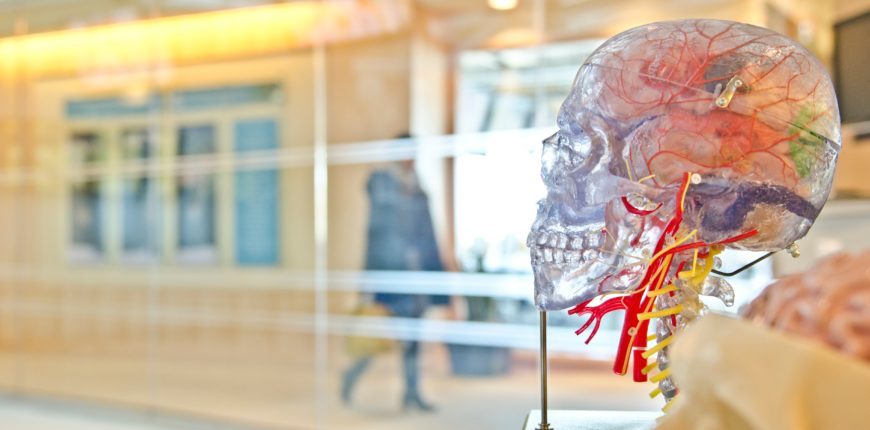 Mózg stwardnienie rozsiane